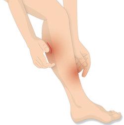 Beine jucken nach rasur
